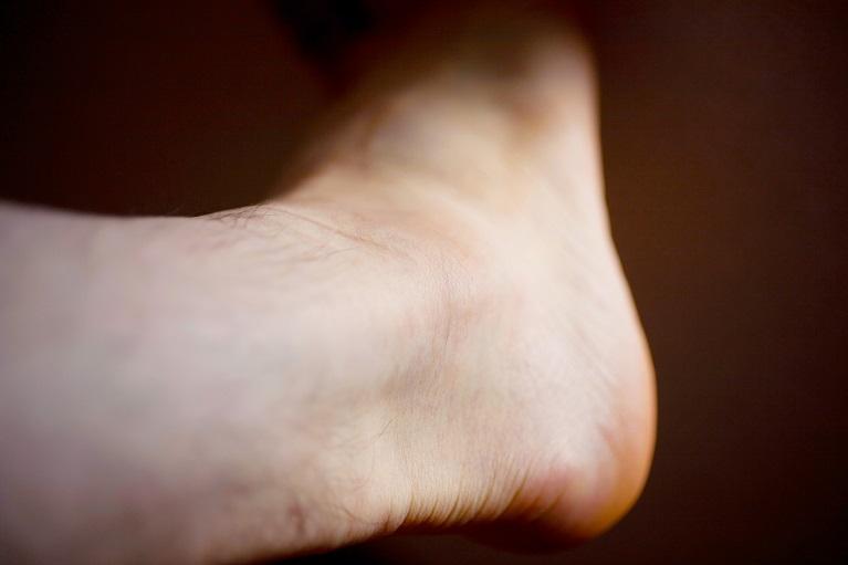足首、かかと、アキレス腱の痛み